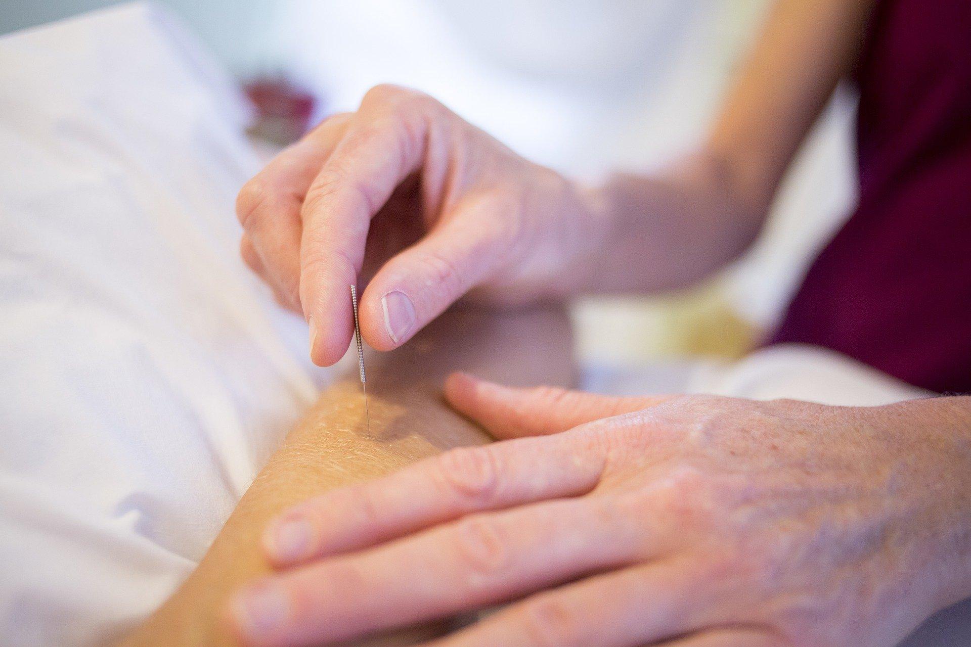 Akupunkturklinikken Ejby